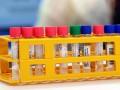 В Запорожье выявили вспышку коронавируса в общежитии