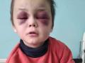 Под Винницей родители зверски избили 6-летнего сына