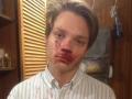 В Каменском банда жестоко избила подростка
