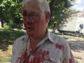 В Харькове участковый не уступил место женщине с инвалидностью и избил ее мужа