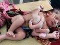В Индии родилась девочка с четырьмя ногами и тремя руками