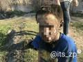 В Запорожье подросток выжил после удара током в 10 тысяч вольт