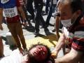 В Москве собирались взорвать бомбу, похожую на использованную в Анкаре – СМИ