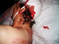 В Кривом Роге жестоко избили замглавы одной из партий