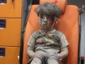 Сеть взволновало видео с мальчиком, выжившим после авиаудара в Сирии