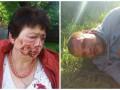 Под Киевом жестоко избили главу территориального избиркома