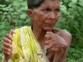 Из-за 31 пальца женщину считают ведьмой