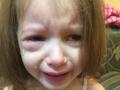 В детсаду Днепра девочку ударили карандашом в глаз