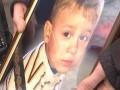 В Киеве врач эндоскопом порвал ребенку пищевод: мальчик умер