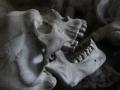 В Чугуеве женщина нашла в доме человеческие кости