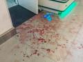 В киевском ТРЦ женщина вскрыла вены из-за рюкзака за 500 грн
