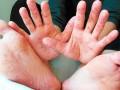 С начала года корью заболели почти 50 тысяч человек