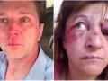 В Киеве избили врачей за отказ брать взятки  - расследование