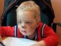 В Житомирской области мать сломала нос двухлетнему сыну