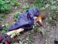 В Киеве мужчина три дня пролежал в кустах из-за травмы спины