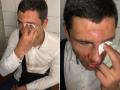 В Киеве избили лидера