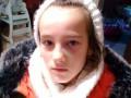 Под Николаевом школьнице на уроке сломали нос