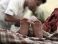 Обряд обрезания стал в Германии предметом для споров юристов
