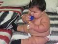 Колумбийская 10-месячная девочка весит как пятилетний ребенок