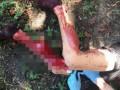 В Киеве задержан изранивший ножом подростка подозреваемый