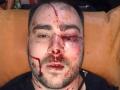 В Запорожье прострелили ногу и избили активиста