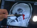 В мозгу мужчины 10 лет жил червь