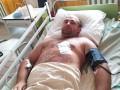 Во Львовской области поймали беглых заключенных: ранен полицейский