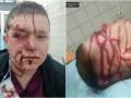 Появились подробности избиения врача в Киеве