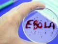 Во Франции госпитализировали сотрудницу ООН, заразившуюся лихорадкой Эбола