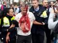 Референдум в Каталонии: стрельба и стычки с полицией
