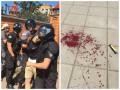 На Марше равенства в Киеве ранили милиционера, более десятка задержанных