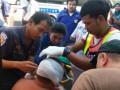 Российскому туристу в Таиланде отрезали ухо - СМИ