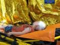 В Белой Церкви отчим выбросил 5-летнего пасынка из окна
