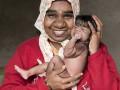 В Индии родился человек-волк (ФОТО)