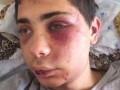 Охранники ночного клуба в Сумах жестоко избили посетителей