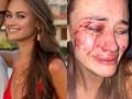 Появилось видео избиения украинской модели в Турции