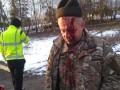 Молотком по голове: Под Тернополем жестоко избили ветерана АТО