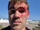 В Киеве владелец интернет-магазина Stylus побил клиента