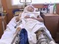 Бойцы АТО без документов не могут выписаться из больниц - СМИ
