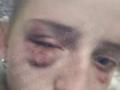 В Киеве школьницы жестоко избили одноклассницу: Все снимали на видео