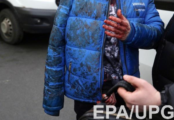 Обезвреженное взрывное устройство вметро Петербурга было установлено вогнетушитель