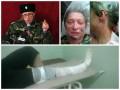 В России активистке ЛНР выбили глаз и переломали кости