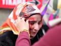 В Стамбуле полиция расстреляла  резиновыми пулями женщин