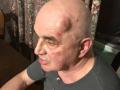 В Запорожье покушались на антимайдановца: Он отстреливался от нападавших