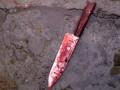 В одном из отелей Крита аниматор изрезал ножом российского мальчика