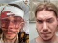 В Харькове жестоко избили активиста
