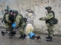 СМИ: Российский генерал в Сирии потерял обе ноги и глаз