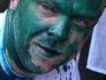 Сергея Власенко облили зеленкой из презерватива (ФОТО)
