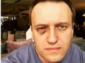 Навального прооперировали в Испании