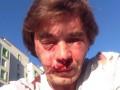 Под Киевом избили активиста, борющегося с застройкой зеленой зоны